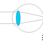 遠視のイメージ